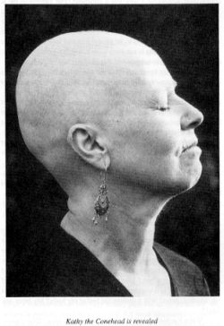 Kathy with shaven head